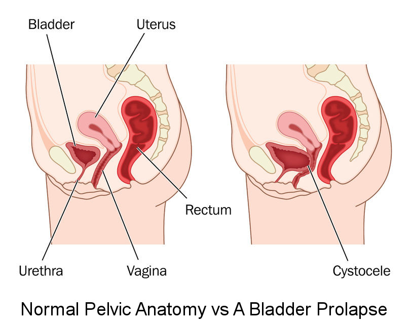 An illustration showing normal female abdominal anatomy and a prolapsed bladder.